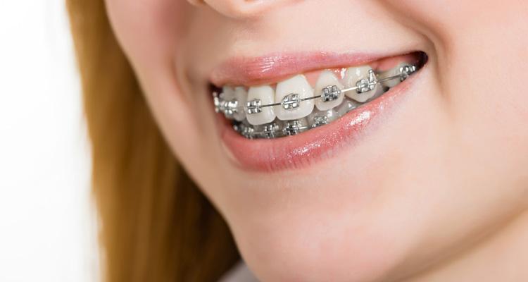 Orthodontische behandelingen voor een mooi gebit